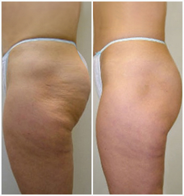 Ultherapy Body