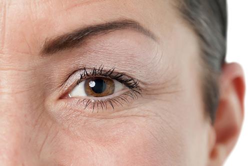 Hướng dẫn cách xóa nếp nhăn vùng mắt hiệu quả