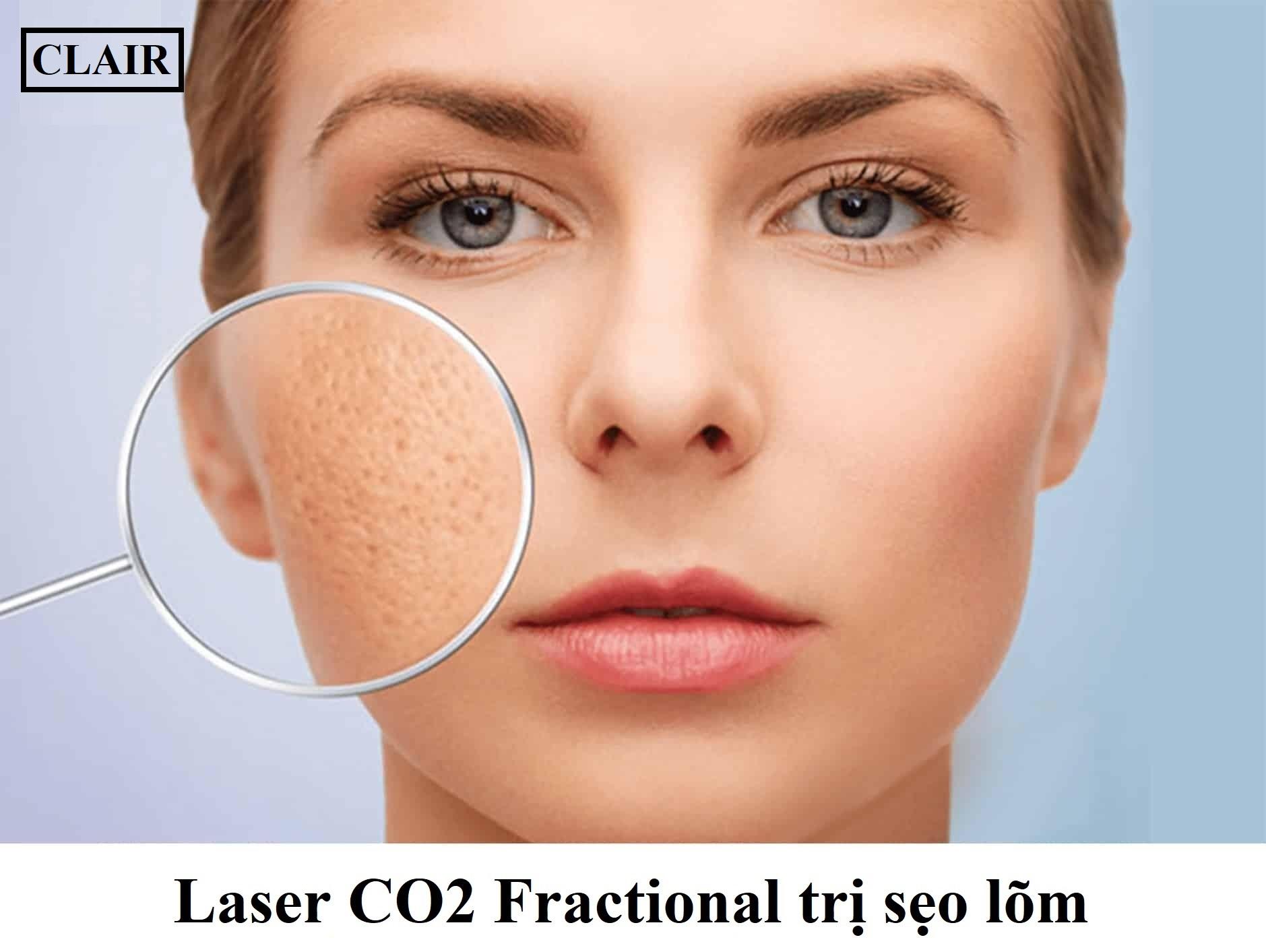 Tác dụng phụ khi sử dụng laser co2 fractional trị sẹo lõm