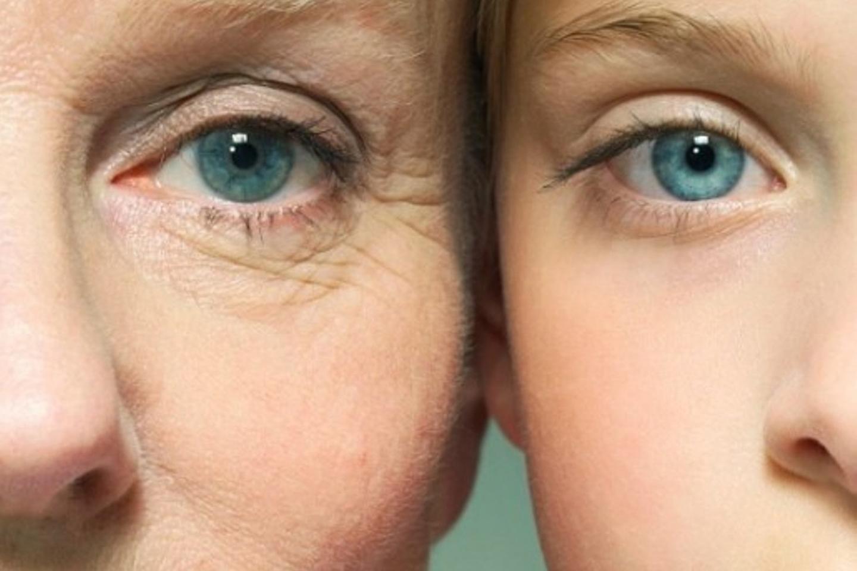 3 cách xóa vết nhăn vùng mắt cực an toàn và hiệu quả